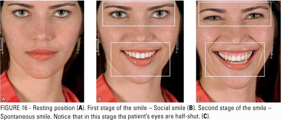Would You Rather Have A Polite Smile Or A Duchenne Smile ...