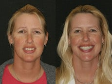 Jeni before and after a non-surgical facelift