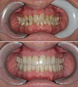 Dental Implants Savannah Patient