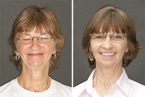 Savannah patient before and after dentures