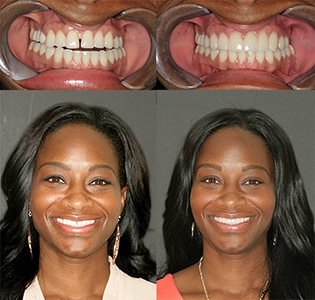 Savannah Porcelain Veneers Patient