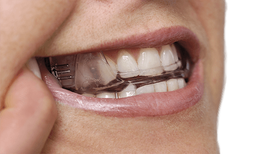 Oral sleep apnea treatment appliance