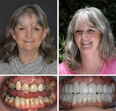 A Cosmetic Dentistry Patient in Savannah Georgia