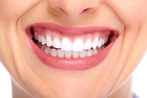 See Yourself with Porcelain Veneers