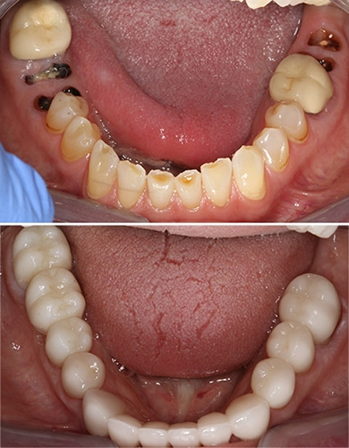 Dental Implant Benefits Savannah, GA