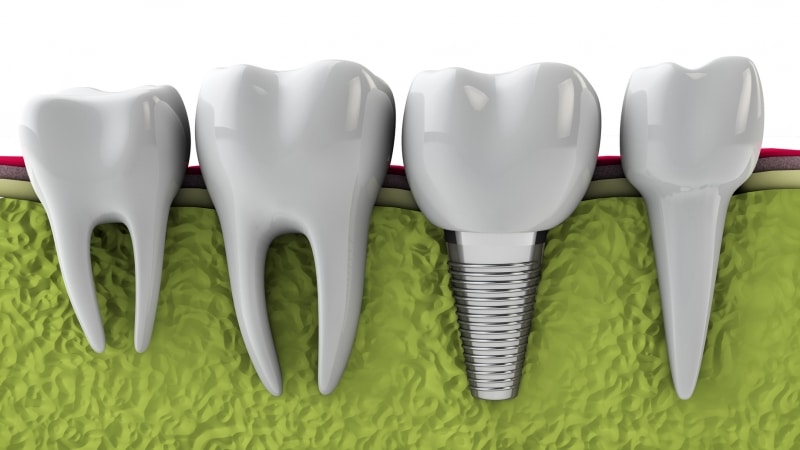 Dental implants can last a long time