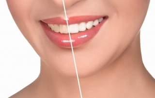 Close up of woman's smile - half before and half after teeth whitening