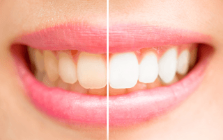 Close-up teeth female with half before teeth whitening and the other half after