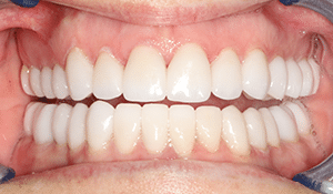 Close up of Ruth's bright smile after dental treatment