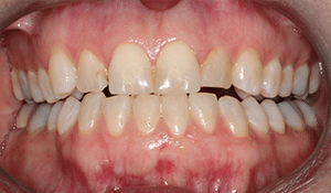 Close up of Ruth's yellowed teeth before dental treatment