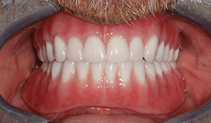 Close up of Jamie's bright smile after dental treatment