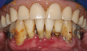 Close up of Jamie's yellowed teeth and receding gums before dental treatment
