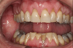 Close up of Janice's discolored and uneven teeth before dental treatment