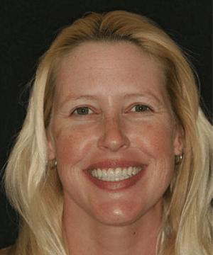 Jeni's beautiful, white, straight smile after dental treatment
