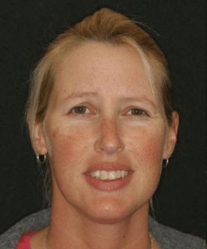 Jeni's smiling portrait before dental treatment