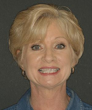 Julie's smiling portrait before dental treatment