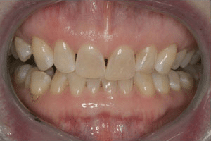 Close up of Katherine's discolored overbite before dental treatment