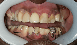 Close up of patient's decaying and discolored teeth before dental treatment