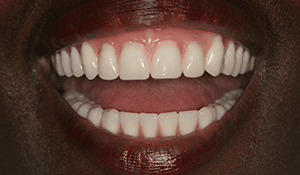 Close up of Kimberly's bright smile after dental treatment