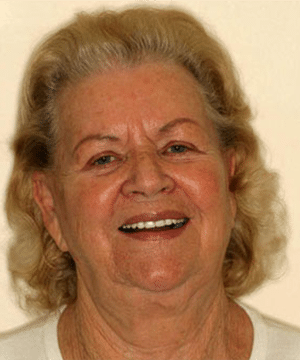 Margarete's smiling portrait after dental treatment