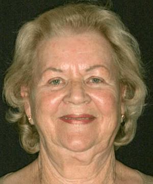 Margarete's portrait before dental treatment