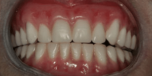 Close up of Margarete's full, bright smile after dental treatment