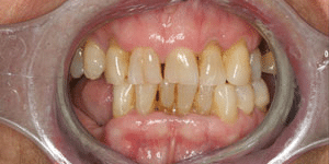 Close up of Margarete's gummy smile with discolored and missing teeth before dental treatment