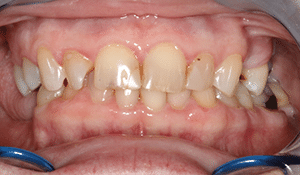 Close up of Martha's discolored, gummy smile before dental treatment