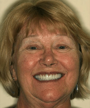 Mary's smiling portrait after dental treatment