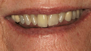 Close up of Mary's discolored and crooked teeth before dental treatment