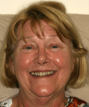 Mary's smiling portrait before dental treatment