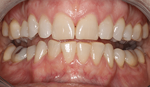 Close up of Pam's discolored and crowded teeth before dental treatment