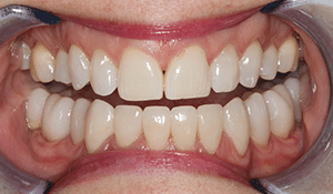 Close up of Pam's bright, straight smile after dental treatment