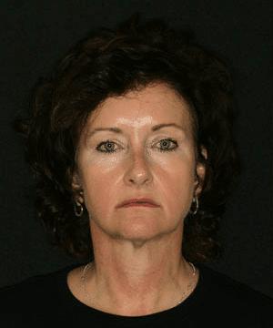 Pat's profile before dental treatment