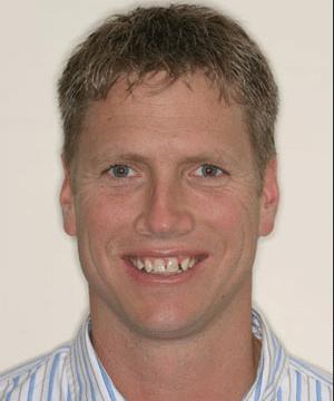 Paul's smiling portrait before dental treatment fixes gaps and discoloration