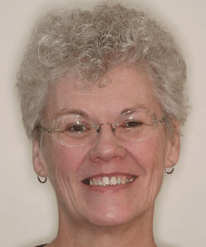 Rebecca's smiling portrait before dental treatment