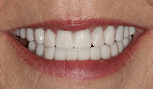 Close up of Renee's bright and straight smile after dental treatment