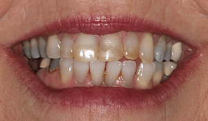 Close up of Renee's discolored and crooked smile before dental treatment