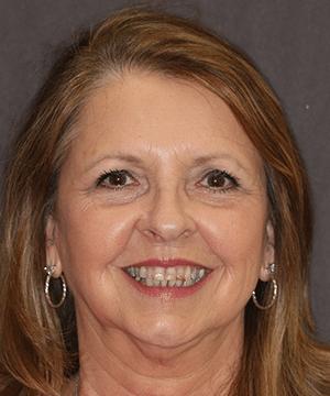 Renee's smiling portrait before dental treatment