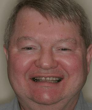 Steve's smiling portrait before dental treatment