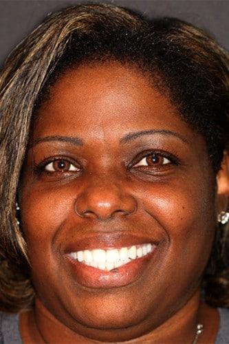 Patient smiling after VitaSmile