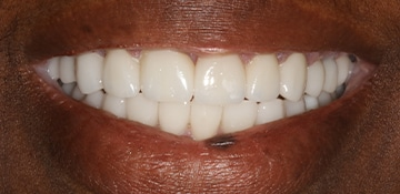 Upclose of patient's teeth after VitaSmile