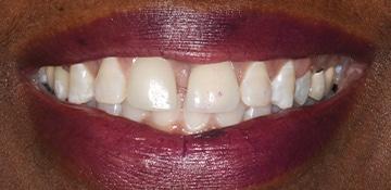 Patients smile before VitaSmile