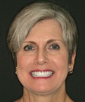 Tammy's smiling portrait after dental treatment whitens and straightens her smile