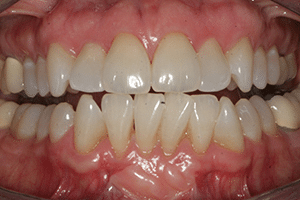 Close up of Tammy's crooked and discolored teeth before dental treatment