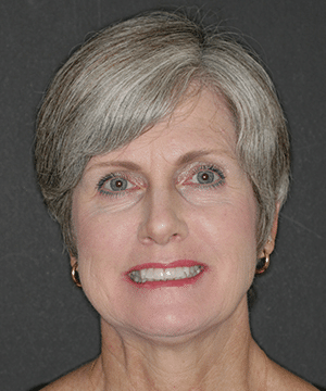 Tammy's smiling portrait before dental treatment