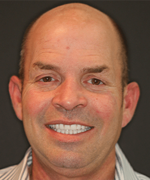 Wilson's smiling portrait with straight, white teeth after dental treatment