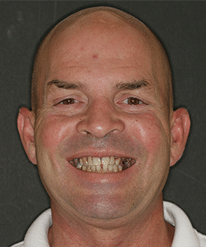 Wilson's smiling portrait before dental treatment to correct discoloration and crookedness