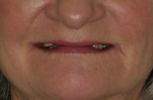 Close up of Delores' smile before dental treatment