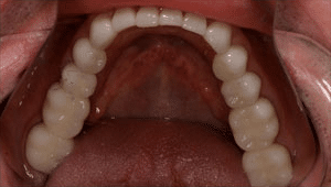 Close up of patient's whitened smile after dental treatment replaces metal fillings with tooth colored fillings
